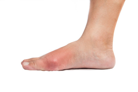 gout: Right foot with painful, swollen and inflamed gout