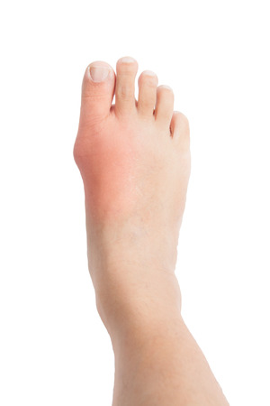 Right foot with painful and inflamed gout photo