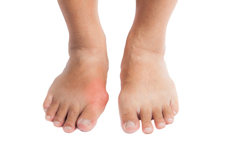 gout: A pair of feet with the right foot swollen, inflamed and deformed due to gout