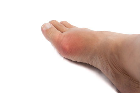 big toe: Foot inflamed and swollen near the big toe area due to gout Stock Photo