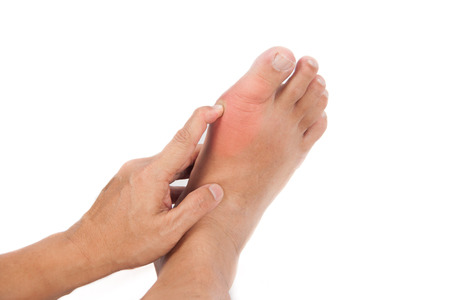 gout: Finger pressing on gout inflamed part of foot