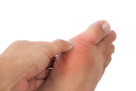 Finger pressing on gout inflamed part of foot photo