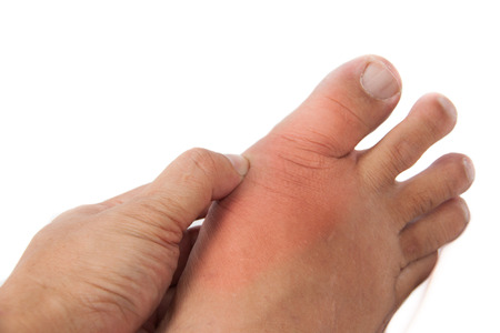 Hand holding foot with inflamed gout photo