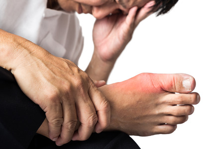 foot pain: Man with painful and swollen right foot due to gout inflammation