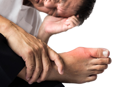 gout: Man with painful and swollen right foot due to gout inflammation