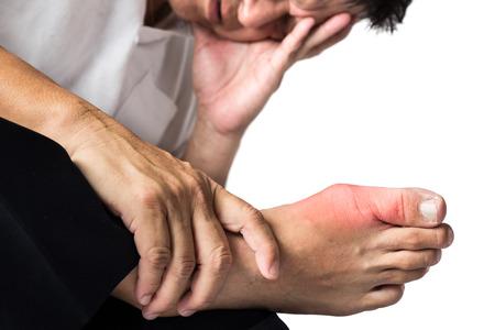 artritis: Hombre con pie derecho dolor e hinchazón debido a la inflamación gota