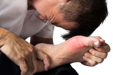 lesionado: Hombre con pie derecho dolor e hinchaz�n debido a la inflamaci�n gota