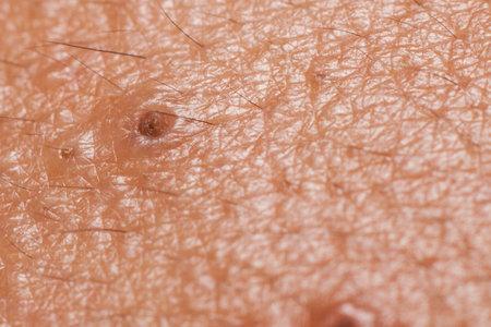 Closed-up of pimple blackheads