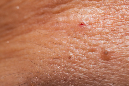 abscess: Crater and blood mark after pimple blackhead extracted.