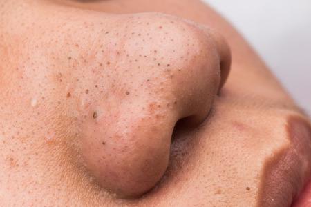 nariz: Cerrado-up espinillas espinillas en la nariz y los labios de un adolescente