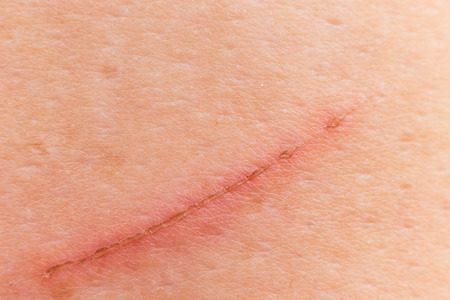 Wound from a cut