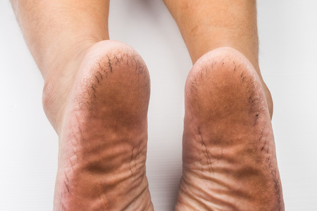 foot fungus: A pair of badly dried and cracked heel