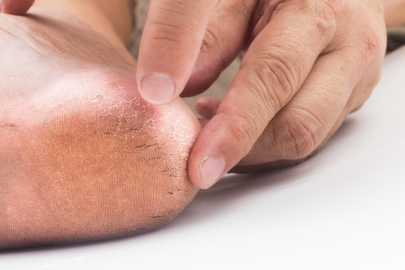 badly: Fingers touching a badly cracked and dried heel