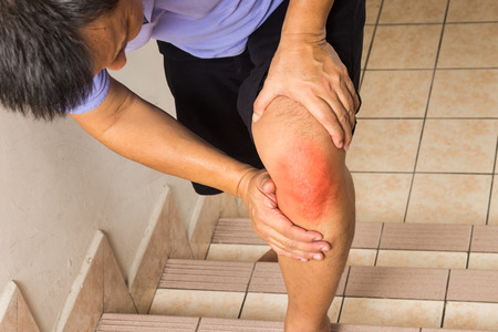 Matured man suffering acute knee joint pain climbing stairs photo