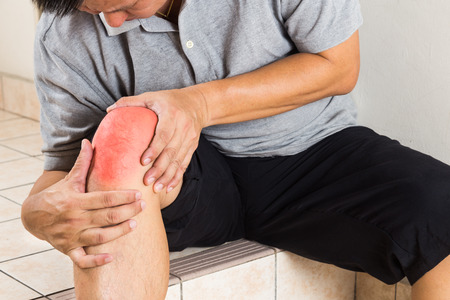 glucosamine: Matured man suffering from painful knee joint resting on steps