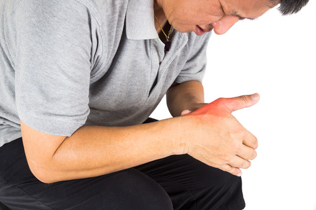 gout: Man with painful and inflamed gout on his hand around the thumb area