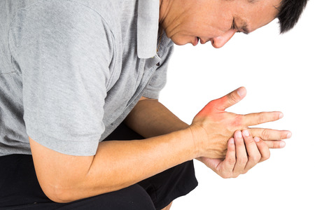 artritis: Hombre con la gota dolorosa e inflamada en su mano alrededor de la zona del pulgar Foto de archivo