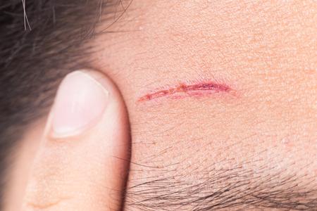 cabeza de mujer: Finger abrazar profunda herida dolorosa en la frente