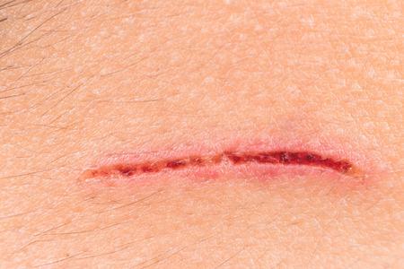 Tiefe schmerzhafte Schnitt auf der Stirn Standard-Bild - 41122911