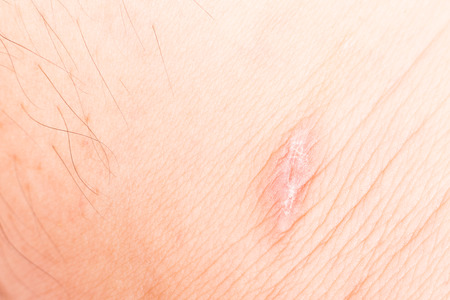 scarring: Scar on skin after recovered