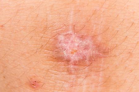 scarring: Brutto cicatrice sul ginocchio ha recuperato da un infortunio dolorosa caduta