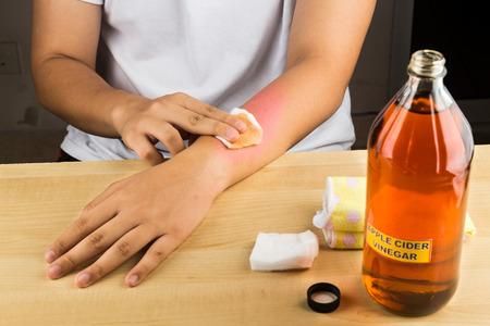 Appelciderazijn effectieve natuurlijke remedie voor de huid jeuk, schimmelinfectie, wratten, kneuzingen en brandwonden