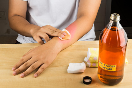 Apple cider vinegar effective natural remedy for skin itch, fungal infection, warts, bruises and burns Stock Photo