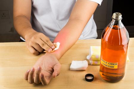 피부 가려움증, 곰팡이 감염, 사마귀, 타박상 및 화상을위한 사과 사이다 식초 효과적인 자연 요법 스톡 콘텐츠