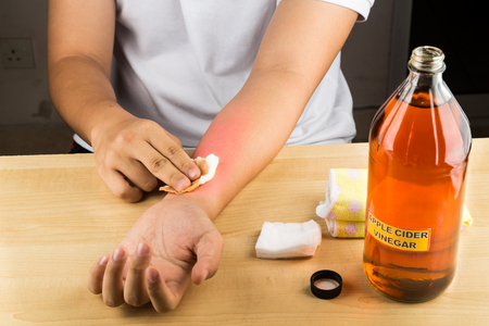 fungal: Apple cider vinegar effective natural remedy for skin itch, fungal infection, warts, bruises and burns Stock Photo