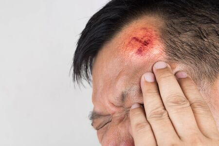 accidental: Selective focus on painful red swollen forehead of man injured from accidental fall