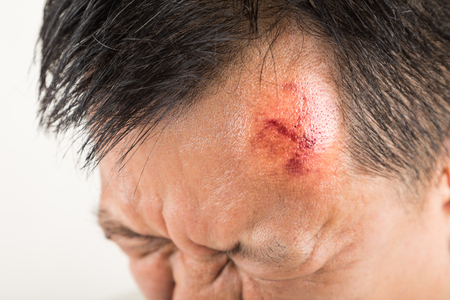 swollen: Selective focus on painful red swollen forehead of man injured from accidental fall