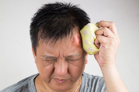 Man treating his injured painful swollen forehead bump from accidental fall  with icepack Stock Photo
