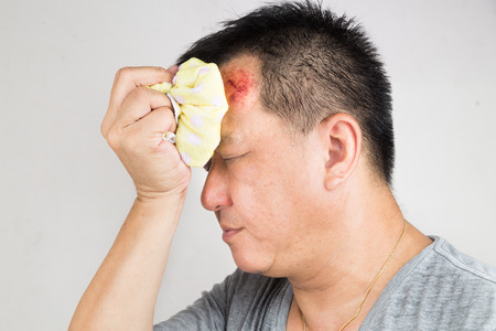accidental: Close up on man treating his injured painful swollen forehead bump from accidental fall  with icepack