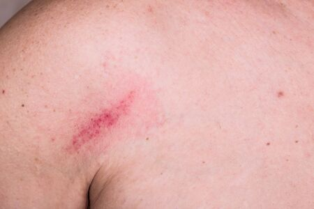 bruise: Minor but painful bruise on skin between shoulder and chest