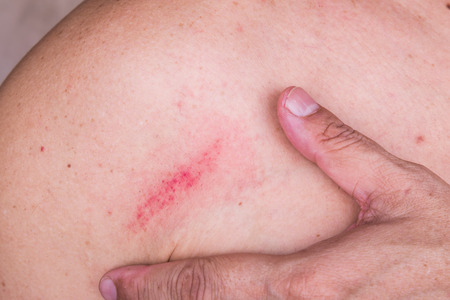 bruise: Fingers embrace minor but painful bruise on skin between shoulder and chest