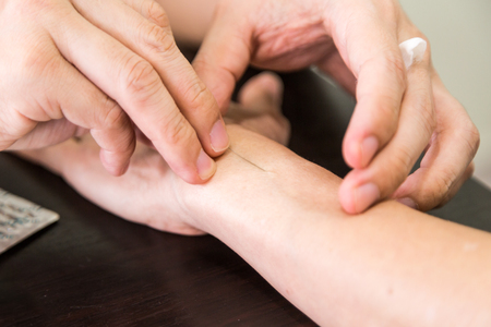 acupuncturist: Shallow depth of field on acupuncturist pricking needle into skin of patient