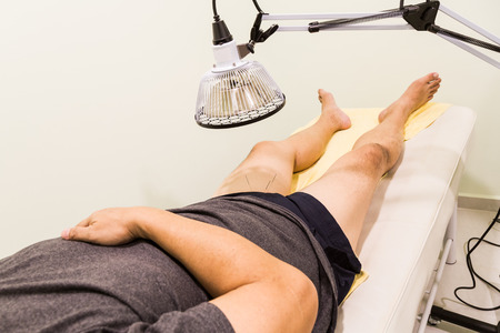 blood circulation: Acupuncture patient being treated with needles on thigh area and infrared heati lamp