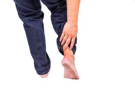 gout: Man with painful inflammation at back of foot area due possibly to gout