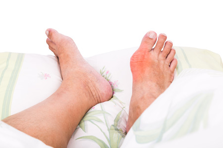 uric: Man with right foot swollen and painful gout inflammation resting on bed Stock Photo