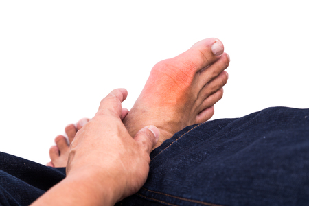 gout: Man in jeans embraces foot with painful and swollen gout inflammation Stock Photo