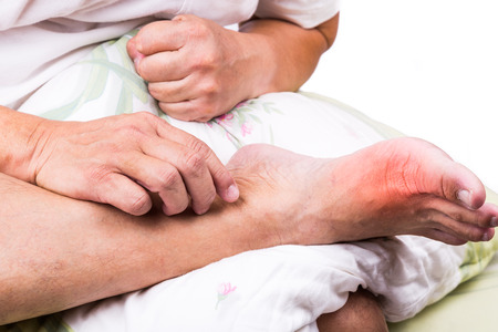gout: Man on bed with pillow embrace foot with painful swollen gout inflammation