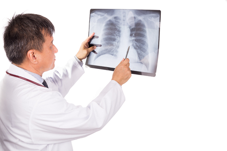 negative film: Matured Asian medical doctor examining lungs X-ray negative film on white background