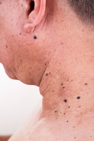 moles: Multiple mole on neck and shoulder of Asian male on white background Stock Photo