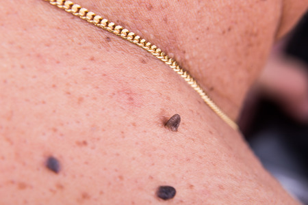moles: Closeup of elevated mole on the shoulder of Asian man