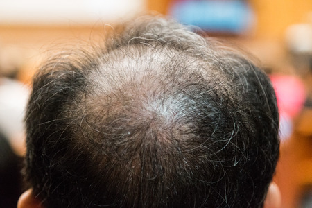 Close-up of balding and thinning hair of man revealing scalp Фото со стока