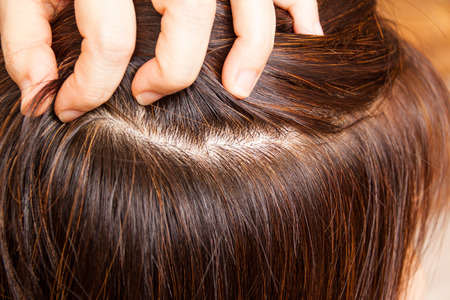 Close-up on dyed hair roots of woman.  No more grays hairs.