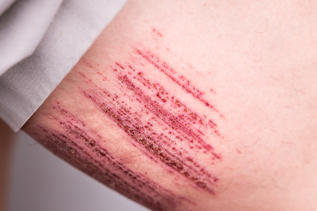 Person with painful injured thigh result of abrasive accidental fall into drain 写真素材