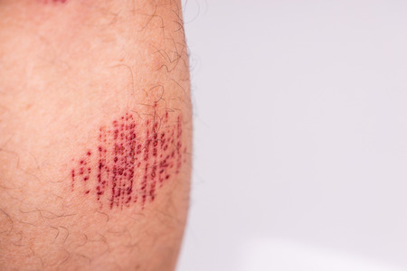 Person with painful injured leg result of abrasive accidental fall into drain