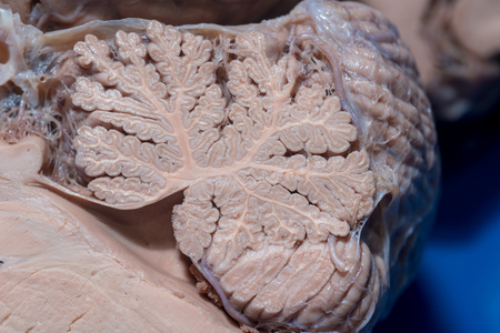 dissection: Close-up detail of a sagittal section of the cerebellum Stock Photo