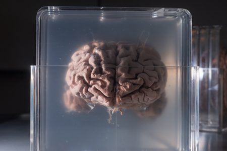 dissection: Brain samples preserved in plastic slides, coronal section.